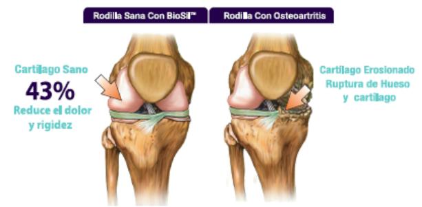 Rodillas cartilago